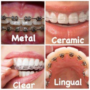 दाँतों के ब्रेसेस