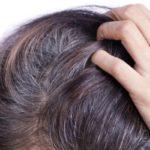 कम उम्र में सफ़ेद बाल का उपचार