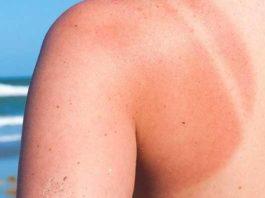 सनस्क्रीन व सनबर्न