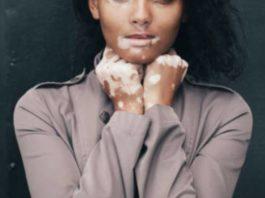 सफ़ेद दाग vitiligo से कैसे बचें